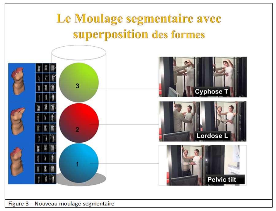 Le moulage digital a remplacé l'ancien moulage plâtré pour traiter la scoliose. © Docteur Jean-Claude Mauroy - Tous droits réservés/Reproduction interdite