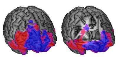En bleu figurent les régions du lobe frontal spécialisées dans la prise de décision, le rouge se réfère au contrôle comportemental. Le cerveau de gauche est complet, tandis qu'une section vient entailler le cerveau de droite pour voir ce qu'il se passe en dessous la surface. © California Institute of Technology