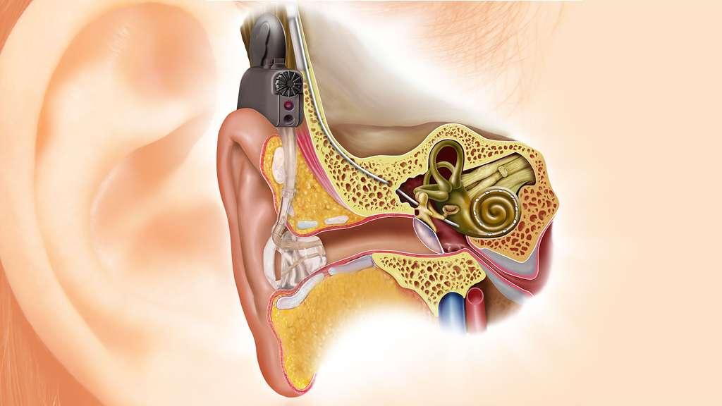 L'implant cochléaire est un implant électronique qui vise à fournir un certain niveau d'audition pour certaines personnes atteintes d'une surdité profonde. © Zipfer, DP
