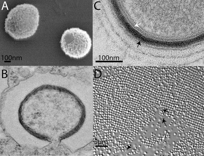 Mollivirus sibericum observé par l'Institut de Microbiologie de la Méditerranée. On le voit en microscopie électronique en A (le virion avec son enveloppe), en B (juste ingéré par l'amibe) et en C (avec une structure fibreuse, montrée par la flèche noire, une ressemblance avec Pandoravirus). En D, une image exceptionnelle : une multitude de virus vus en microscopie optique, avec un grossissement de 63 fois seulement. © Mathieu Legendre et al., Pnas