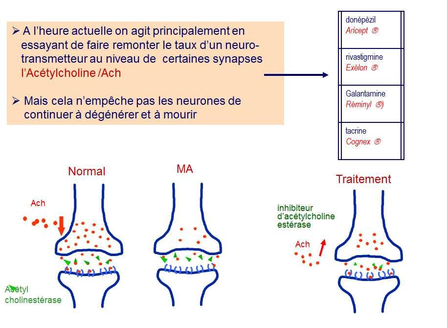 Le traitement d'Alzheimer agit sur le processus pathologique cérébral. © DR