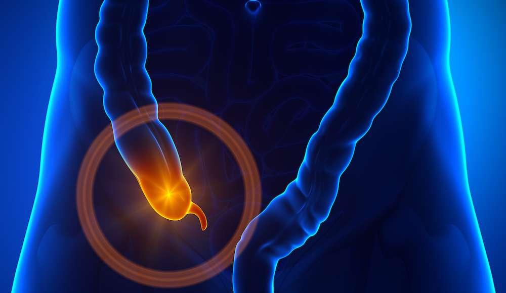 L'appendice est le petit organe situé au bout du côlon après le cæcum. © decade3d, Fotolia