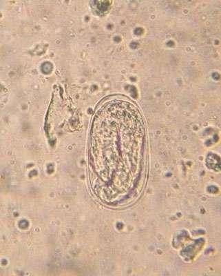 Ver parasite de ruminant