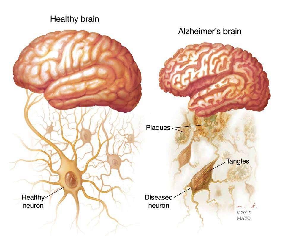 À gauche de l'image, le cerveau est sain et les neurones en bonne santé. À droite, le cerveau d'un malade d'Alzheimer. Les plaques amyloïdes s'accumulent entre les neurones tandis que les enchevêtrements de protéines tau déstabilisent les micro-tubules à l'intérieur des neurones, conduisant à leur mort. © 2015 Mayo
