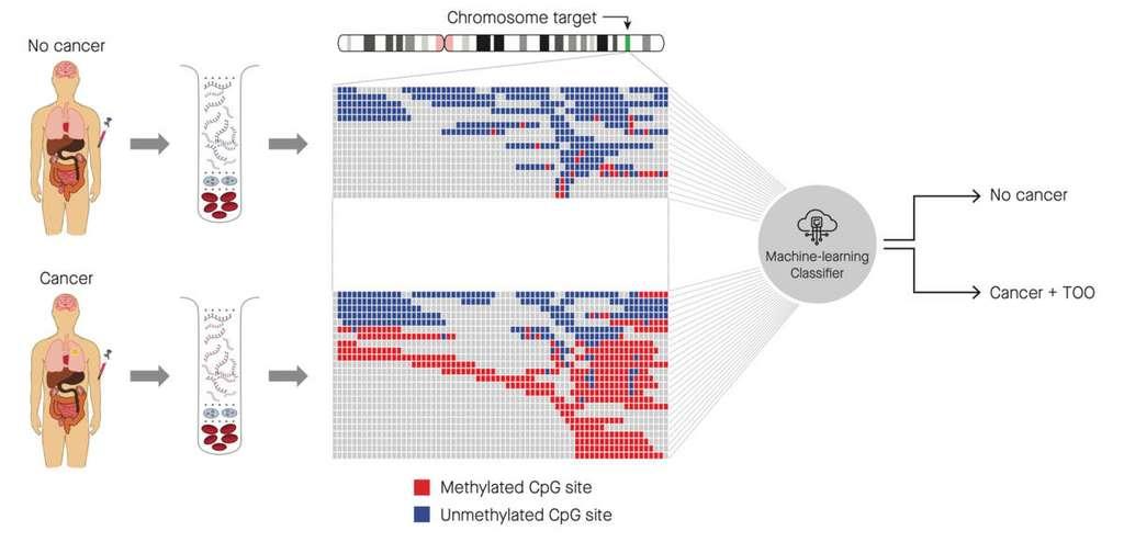 Le test de dépistage basé sur le machine learning. L'algorithme compare les sites méthylés sur de l'ADN circulant, produit par les cancers. Selon le profil des méthylations, il classe l'échantillon en deux catégories : cancéreux (avec détermination du tissu d'origine) ou non cancéreux. © M. C. Liu et al, Annals of Oncology