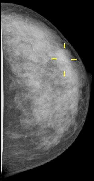 Une mammographie n'est autre qu'une radiographie des seins, réalisée de face et de profil afin d'avoir une vision la plus complète des tissus. Ici, une tumeur est signalée par les traits jaunes. © MBq, Wikipédia, cc by sa 3.0