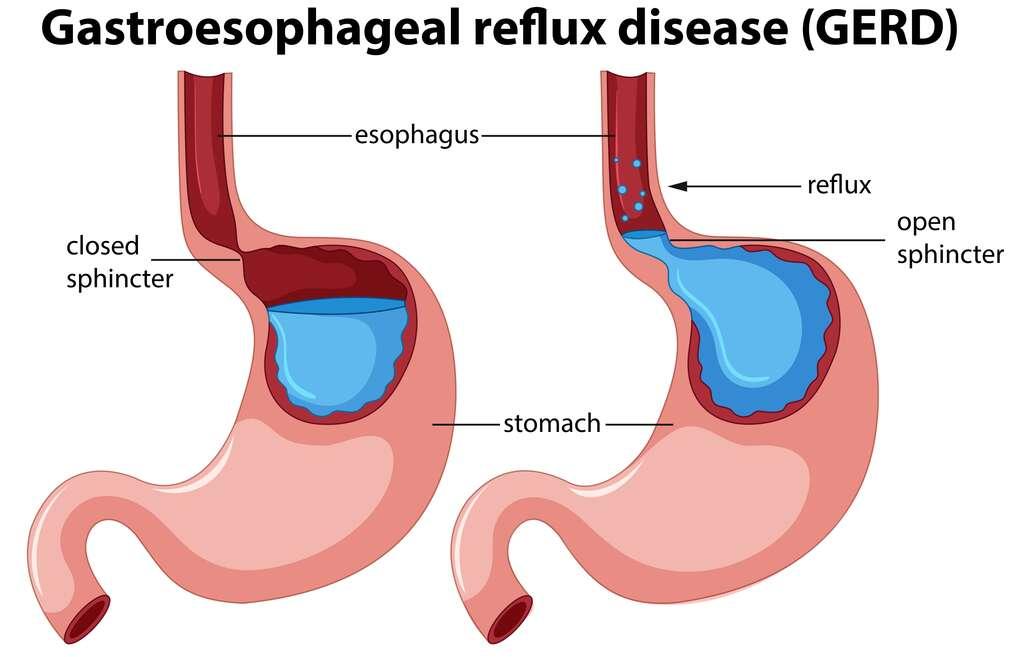 Reflux gastro-œsophagien : le contenu de l'estomac remonte par défaillance du muscle sphincter © brgfx, Freepick