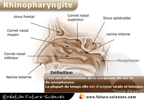 Rhinopharyngite