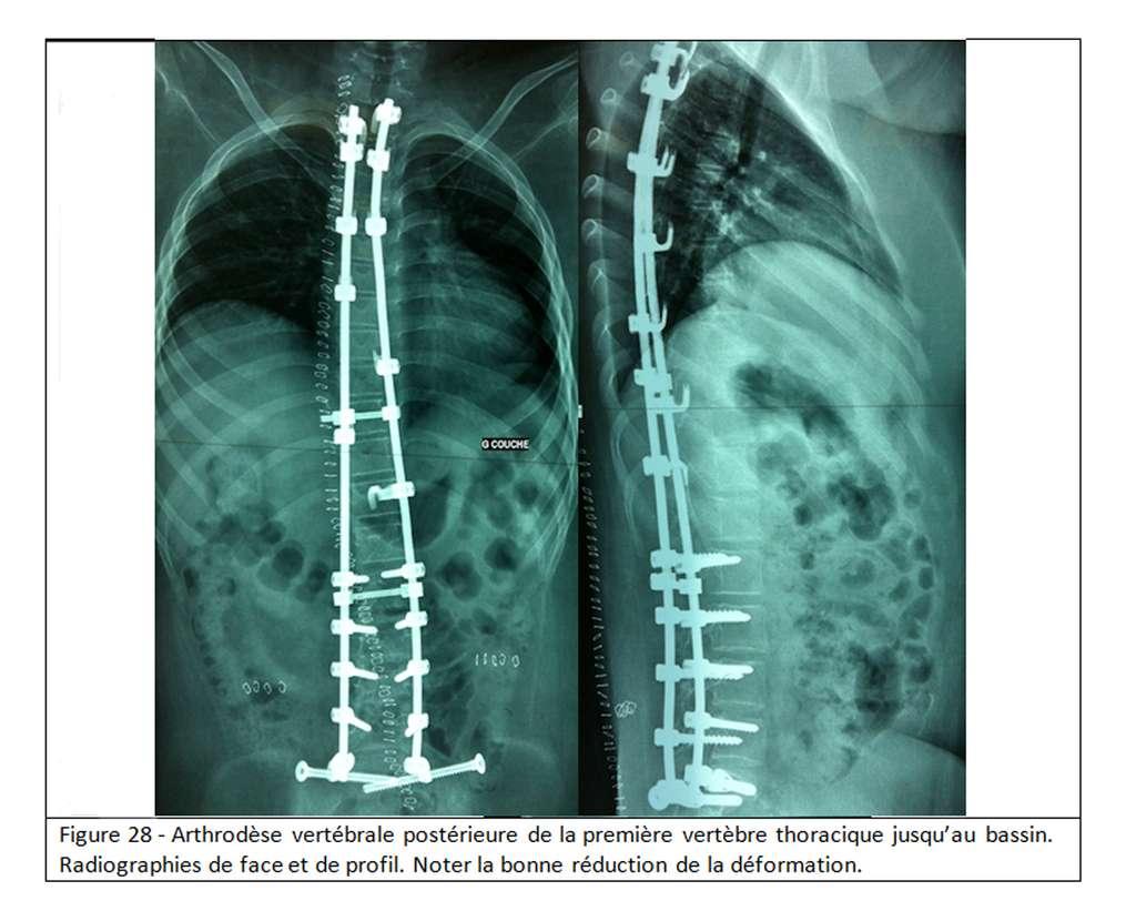 La scoliose peut être réduite suite à une opération chirurgicale. © Docteur Jean-Claude de Mauroy. Tous droits réservés/Reproduction interdite