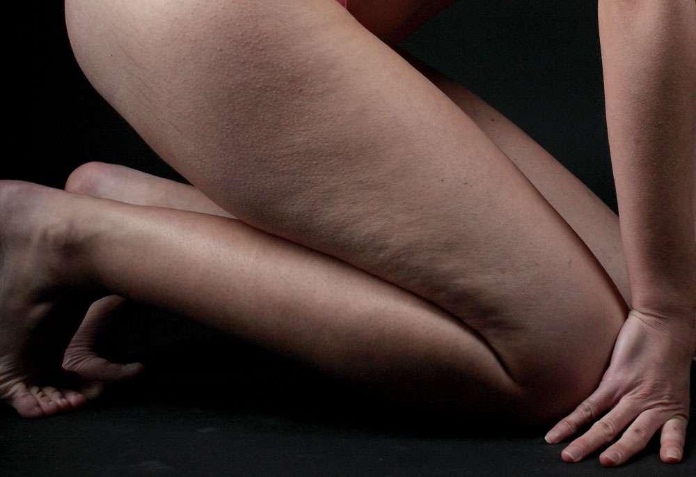 Cellulite légère sur les cuisses. © Lanzi, Wikimedia Commons, CC by-sa 3.0