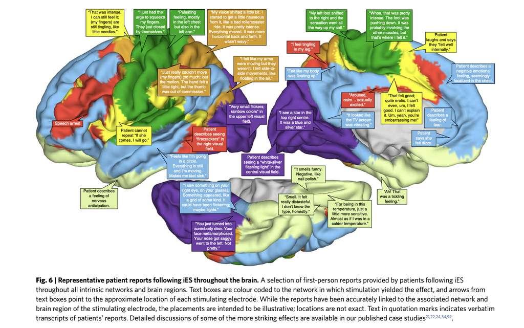 Ce que vous pourriez dire si on stimulait ces zones de votre cerveau. © Nature human behaviour