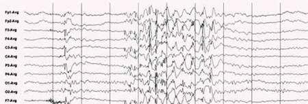 EEG d'une crise d'épilepsie généralisée. © lecerveau.mcgill.ca