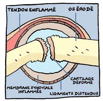 Articulation touchée par la polyarthrite rhumatoïde. © Andar (Association nationale de défense contre l'arthrite rhumatoïde)