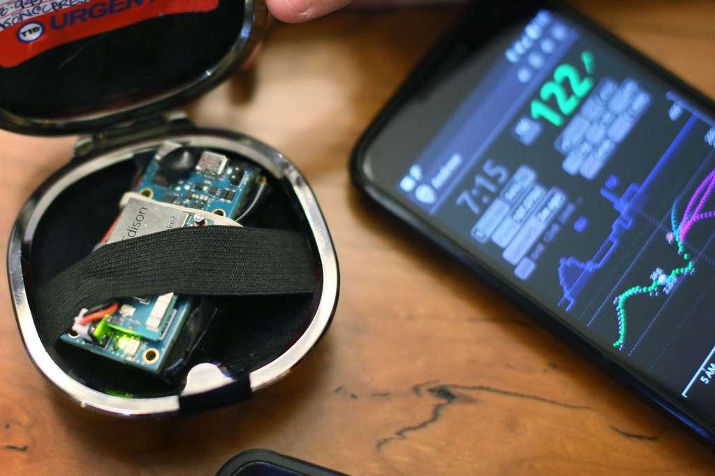 Le pancréas artificiel a été fabriqué à partir d'un micro-ordinateur Edison d'Intel. Il contrôle un capteur de taux de glucose et une pompe à insuline qui est pilotée par des algorithmes. © Sandy Huffaker, Wall Street Journal