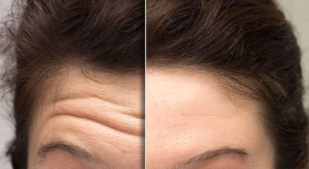Diminution des rides du front après injections de Botox. © Alessandro Grandini, Adobe stock