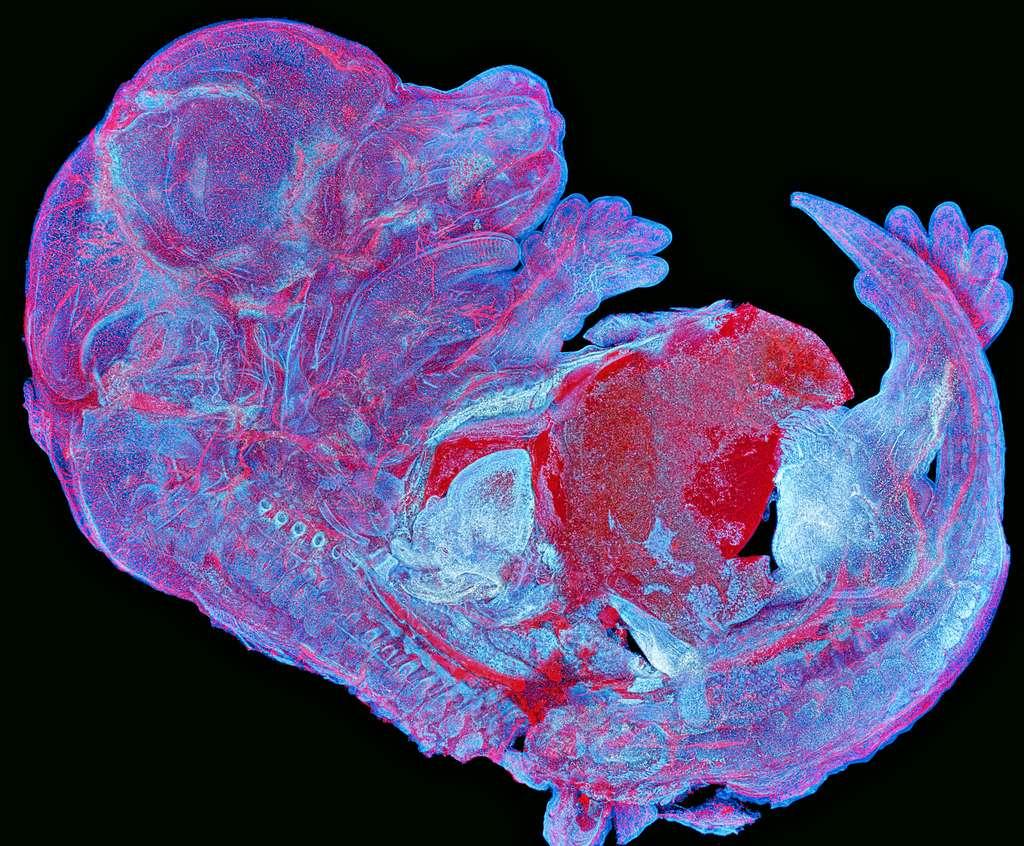 Embryon de souris vu au microscope. © Howard Vindin (Australie), Olympus