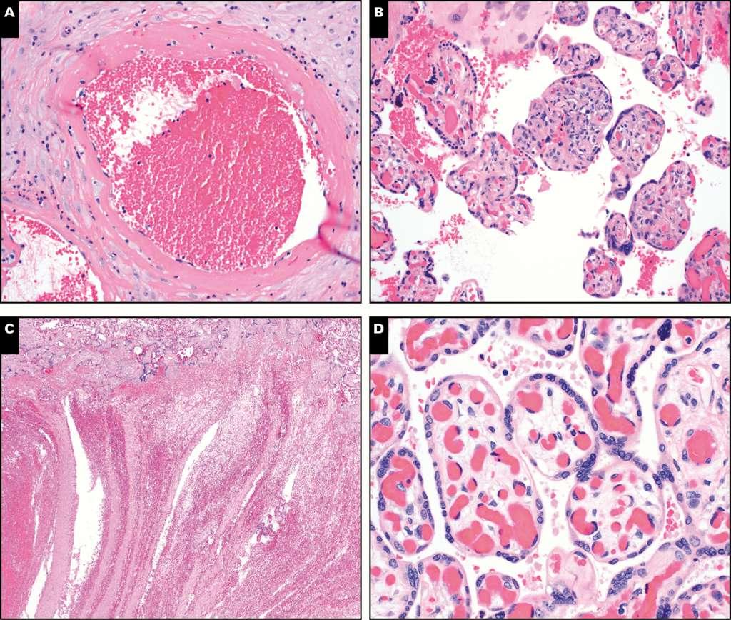 Exemple de lésions pathologiques observées au microscope optique sur le placenta de femmes infectées le coronavirus. A : artériole maternelle avec athérose et nécrose fibrinoïde. B : des lymphocytes présents dans les villosités fœtales. C : un thrombus intervillosité. D : un œdème et une chorangiose dans les villosités fœtales. © Elisheva D. Shanes et al. AJCP