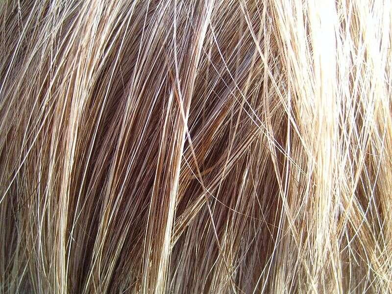Les cheveux et les poils se forment dans les follicules pileux de la peau. © Titus Tscharntke, Wikimedia Commons, DP