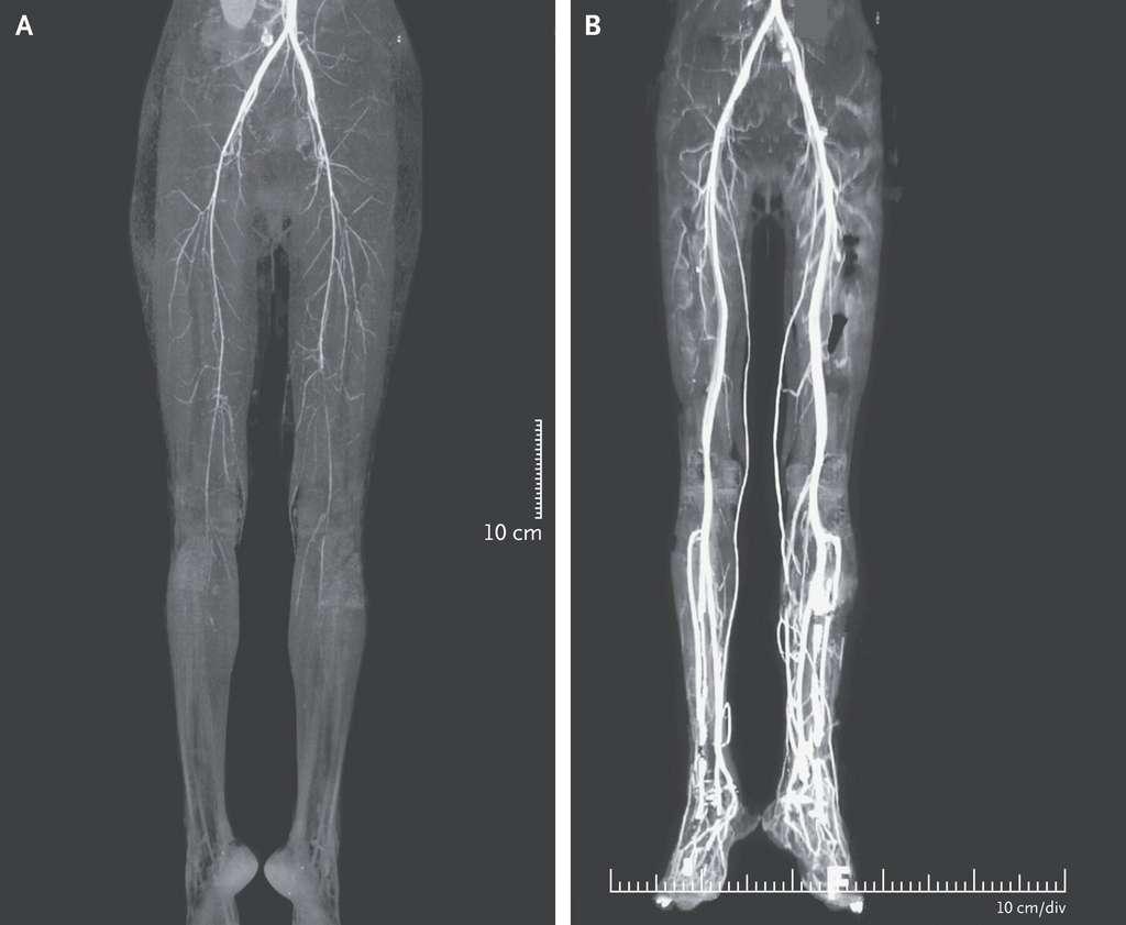 L'angiographie par tomodensitométrie permet de cartographier les vaisseaux sanguins. Sur le panneau A, elle révèle une vasoconstriction symétrique des deux jambes, à tel point qu'elles sont peu voire pas vascularisées. Sur le panneau B, on voit que le traitement a nettement amélioré la circulation du sang. © Aravind Reghukumar et Reshma Benson, NEJM