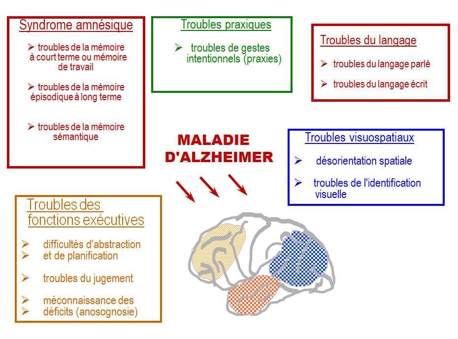 Les troubles causés par la maladie d'Alzheimer sont variés. © DR