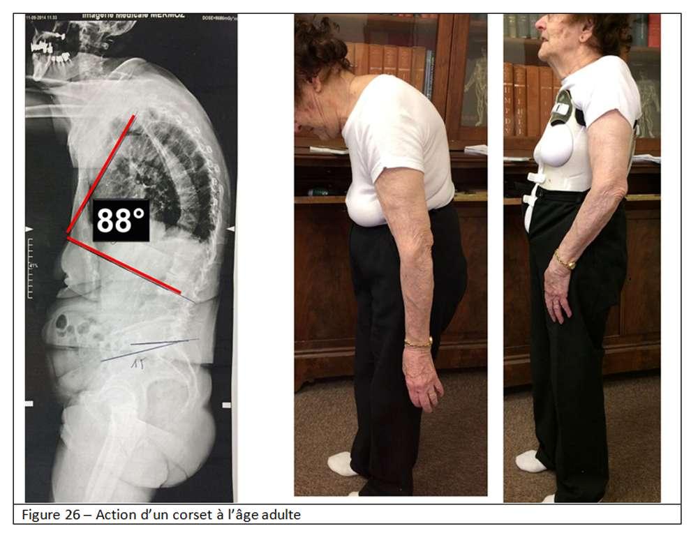 Un corset à l'âge adulte. © Docteur Jean-Claude de Mauroy. Tous droits réservés/Reproduction interdite