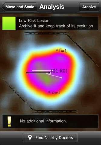 L'algorithme mathématique spécifique permet de suivre l'évolution de vos grains de beauté. © iTunes, domaine public