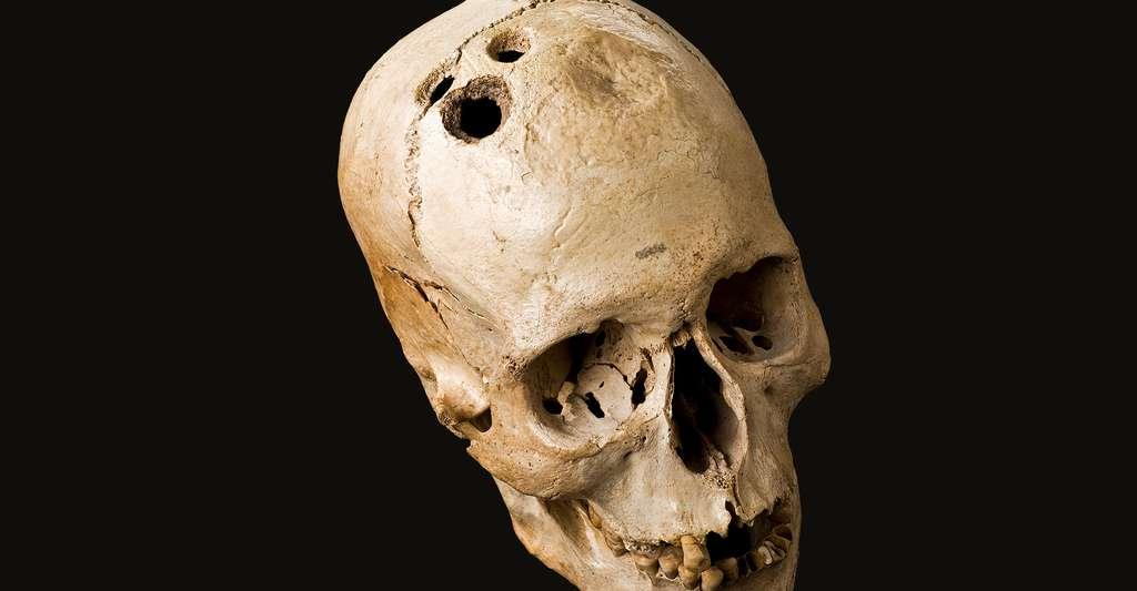 Trépanation d'un crâne. © Wellcome Images, CC by 4.0