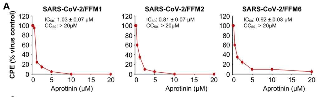 L'effet cytopathique (CPE) du SARS-CoV-2 en présence de concentration croissante d'aprotinine sur 3 isolats différents de SARS-CoV-2. © Denisa Bojkova et al. Cells