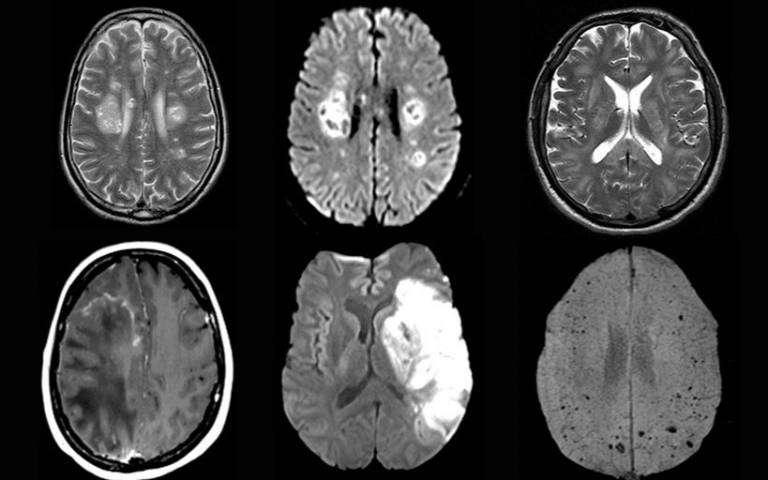 Scanner cérébral de trois patients de l'étude atteint de dommages cérébraux. © Paterson et al. Brain 2020