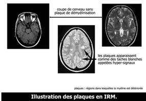 IRM et sclérose en plaques. Chez un malade atteint de SEP, des taches blanches apparaissent. © ARSEP.