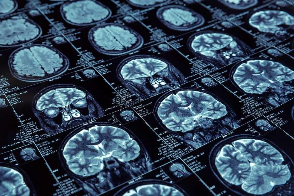 Dans le cerveau de patients souffrant d'Alzheimer, on observe des plaques séniles correspondant à l'accumulation d'amyloïde. © Nomad_Soul, Fotolia