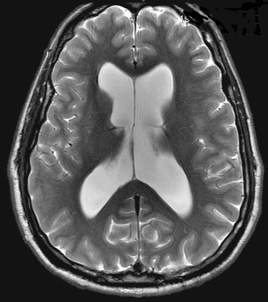 Imagerie par résonance magnétique (IRM) [b]. En 1973, Paul Lauterbur utilise un spectromètre RMN haute résolution pour fournir la première IRM : deux tubes à essai remplis d'eau. En l'espace de dix ans, cette expérience a évolué pour devenir l'outil de choix pour le diagnostic de nombreuses maladies, en particulier de cancers. © L'Actualité chimique