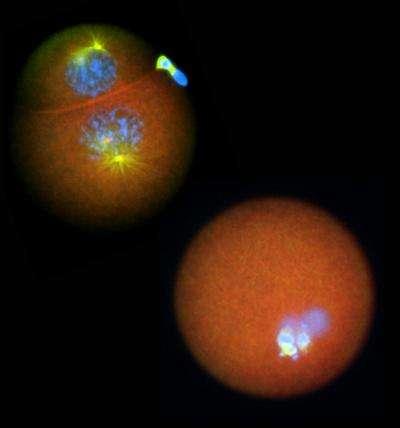 Deux ovocytes de Spisula observés au microscope : celui du haut possède un nucléolinus intact, alors que celui du bas a subi une micro-chirurgie pour détruire la structure cellulaire. La division cellulaire est fortement affectée en absence de nucléolinus. © Mary Anne Alliegro, Marine Biological Laboratory