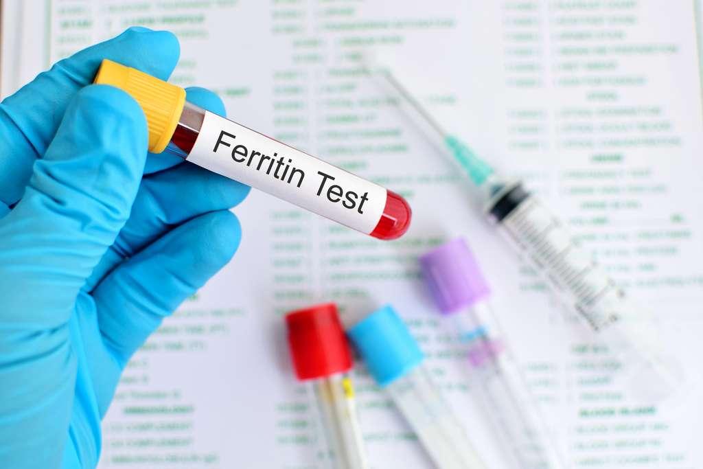 Un taux élevé de ferritine dans le sang associé à une grande fatigue doit faire penser à une hémochromatose. © jarun011, Fotolia
