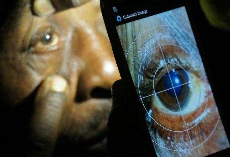 Peek permet de réaliser les principaux examens oculaires qui aident à déceler les affections responsables des déficiences visuelles, notamment la cataracte. © Peek Vision