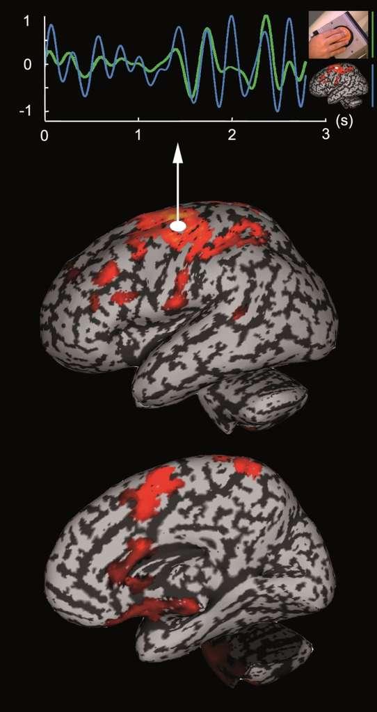 La magnétoencéphalographie (MEG), pour lire le cerveau