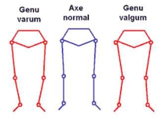 Les déformations du genou. Source : Société Française de Rhumatologie