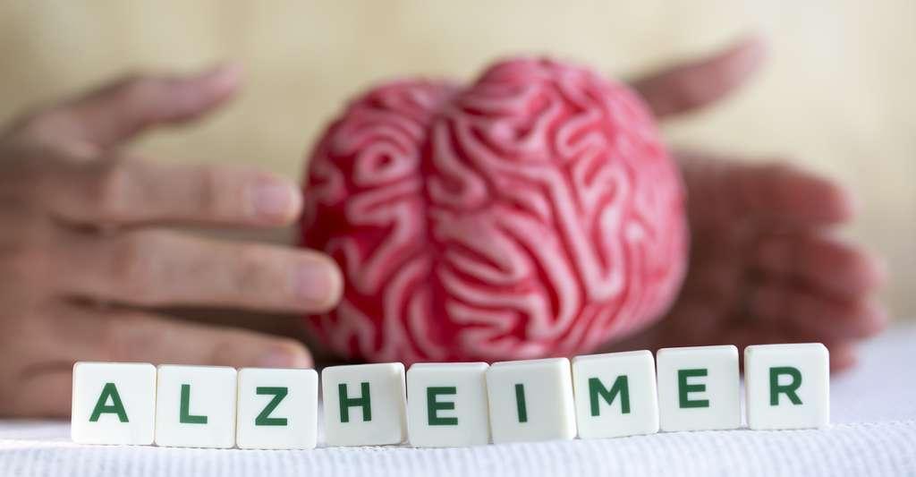 La maladie d'Alzheimer atteint le cerveau. Mais des chercheurs assurent aujourd'hui qu'elle laisse aussi des traces dans nos yeux. © aytuncoylum, Fotolia