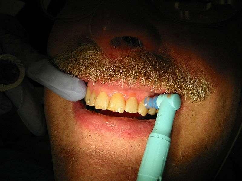 L'hygiène buccodentaire est importante. Blanchir ses dents à l'aide du peroxyde d'hydrogène ne vaut pas des soins réguliers chez le dentiste. © Walter Siegmund, Wikimedia Commons, cc by sa 3.0