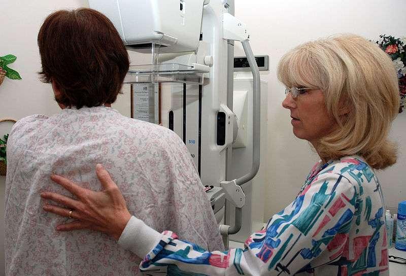 La mammographie reste aujourd'hui l'un des moyens les plus répandus pour détecter les tumeurs cancéreuses du sein. © Joseph Moon, Wikimedia Commons, DP