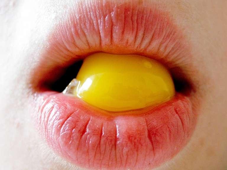 Les jaunes d'œuf se retrouvent dans beaucoup d'aliments : pâtisseries, panures, ou encore sauces. Personnes à risques, veillez à ne pas en manger trop ! © Zasypkyn, StockFreeImages.com
