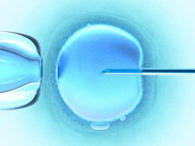 L'injection intracytoplasmique de sperme dans l'ovule est une des techniques de procréation médicalement assistée couramment utilisée. © Crédits duofertility.com