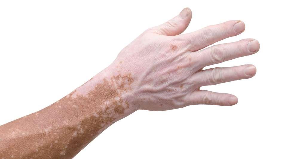 Les personnes qui souffrent de vitiligo — entre 0,5 et 2 % de la population — présentent des plaques blanches correspondant à des zones sur lesquelles les cellules qui produisent la mélanine ont disparu. Les nanoparticules synthétisées par des chercheurs américains pourraient venir s'y substituer. © gamelover, Fotolia