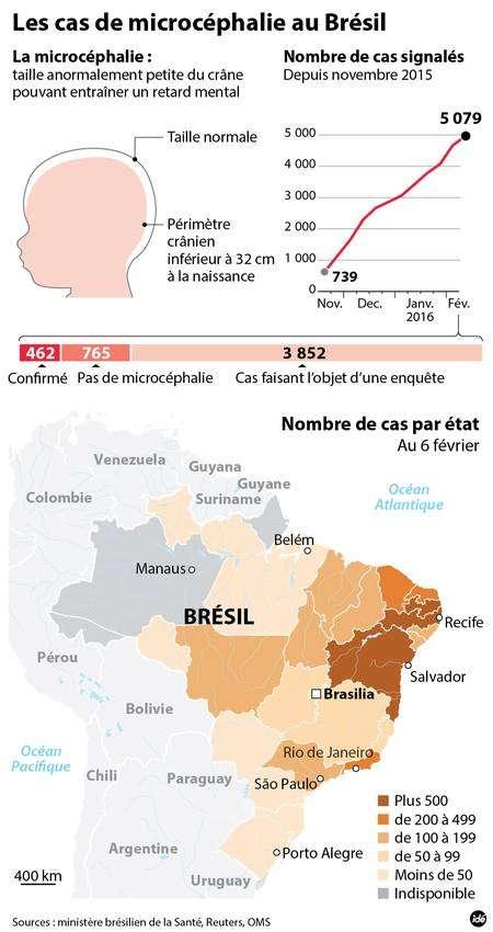Des milliers de cas de microcéphalies ont été signalés au Brésil depuis novembre 2015. © idé