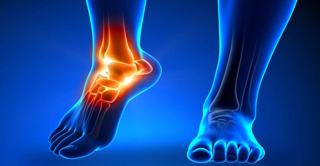 Environ 25 % des femmes sont atteintes d'ostéoporose entre 60 et 75 ans et environ 50 % après 75 ans. © Domaine public