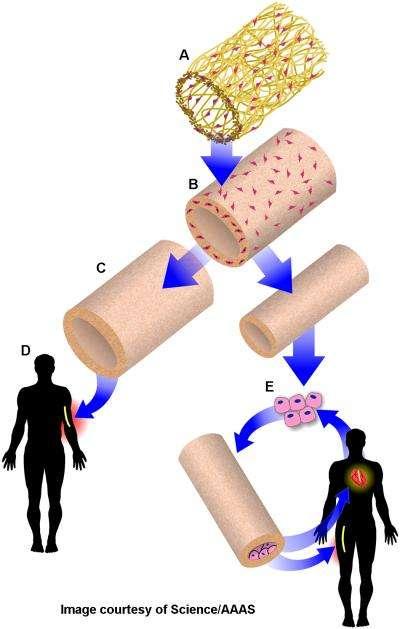 Les artères biosynthétiques sont fabriquées sur un polymère (A), à l'aide de cellules musculaires (B), qui sont ensuite éliminées (C). Elles peuvent alors être utilisées comme accès vasculaire pour les patients sous dialyse (D), ou pour des pontages coronariens (E). © Image courtesy of Science/AAAS
