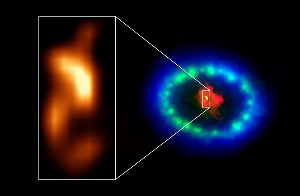Des images Alma à très haute résolution ont révélé un « globule » chaud dans le noyau poussiéreux du reste de la supernova SN 1987A (encart), qui pourrait être l'emplacement de l'étoile à neutrons manquante. La couleur rouge montre de la poussière et du gaz froid au centre du reste de supernova, pris à des longueurs d'onde radio avec Alma. Les teintes vertes et bleues révèlent l'endroit où l'onde de choc en expansion de l'étoile explosée entre en collision avec un anneau de matière autour de la supernova. Le vert représente la lueur de la lumière visible, capturée par le télescope spatial Hubble de la Nasa. La couleur bleue révèle le gaz le plus chaud et est basée sur les données du télescope spatial à rayons X Chandra de la Nasa. © Alma (ESO, NAOJ, NRAO), P. Cigan et R. Indebetouw ; NRAO, AUI, NSF, B. Saxton ; Nasa, ESA