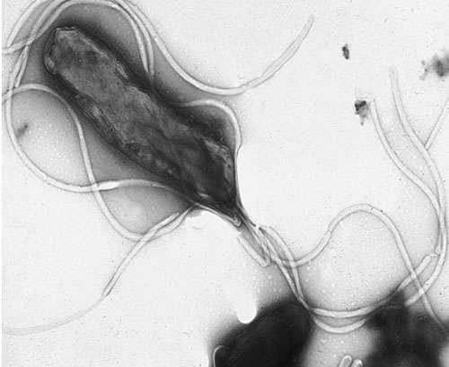 Une bactérie pourvue de longs flagelles, vue en microscopie électronique à balayage - Helicobacter pylori montrant de nombreux flagelles à la surface de la cellule. © Domaine public