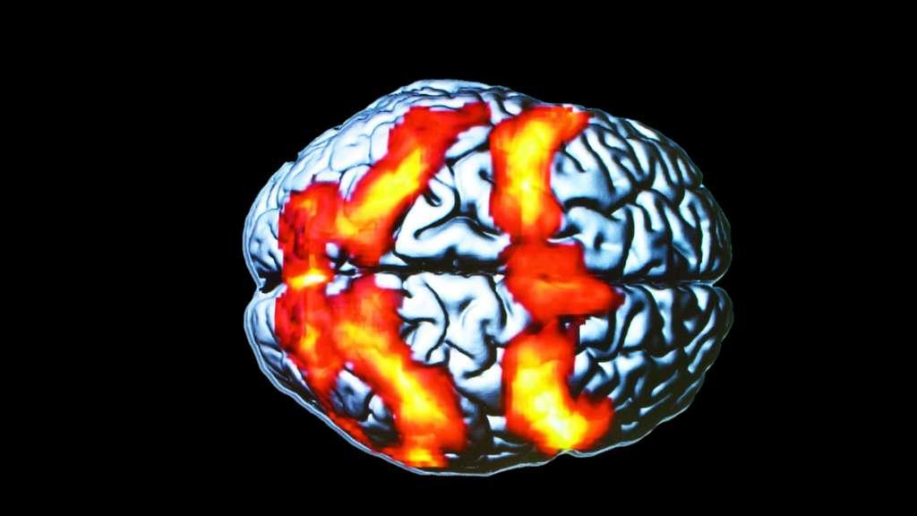 L'IRM, pour voir les régions qui s'activent dans le cerveau