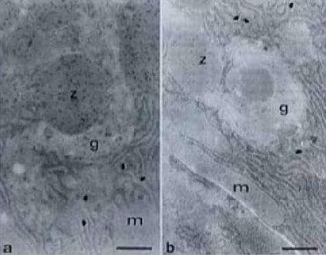 Cellules pancréatiques de rats de laboratoire vues au microscope. A gauche, alimentées au maïs non OGM. A droite, alimentées au maïs MON 863. Cette dernière coupe révèle une raréfaction d'enzymes digestives (points noirs).
